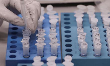 UFRJ desenvolve teste de baixo custo para detecção de covid-19